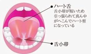 舌小帯短縮症