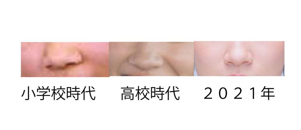 永野芽郁の鼻び比較