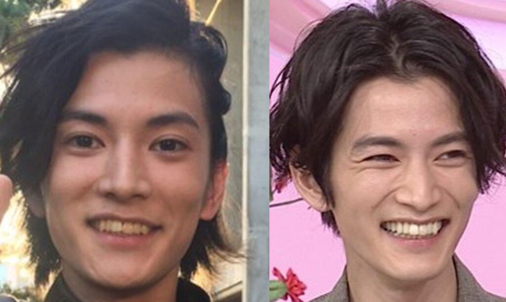 渡邊圭祐の歯の比較画像